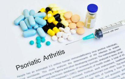 Psoriatic Arthritis or Arthritis Psoriatica – Causes, Symptoms & Treamtents