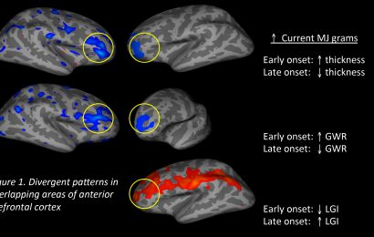 Discover the Grave Effects of Marijuana on the Brain!