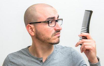 Top 10 Remedies for Hair Loss In Men